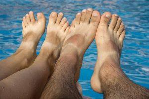 Oops. Sandal Tan Lines